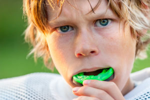 Dental Mouth Guards