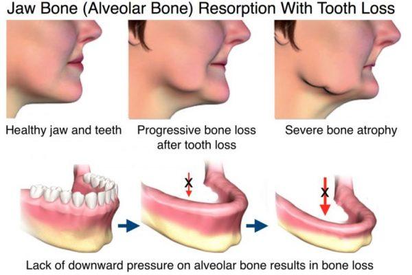 jaw-bone-loss-768x527